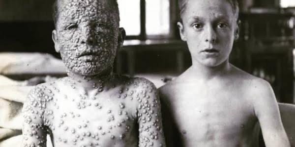 Coronavírus e a Varíola - o que podemos aprender com a única erradicação de doença infecciosa no mundo - TV CNB