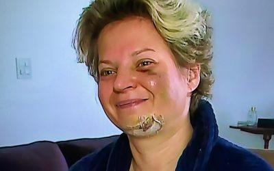 Joice Hasselmann diz que foi agredida, mas não lembra de nada